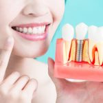 Answering Top 5 Questions About Dental Implants!